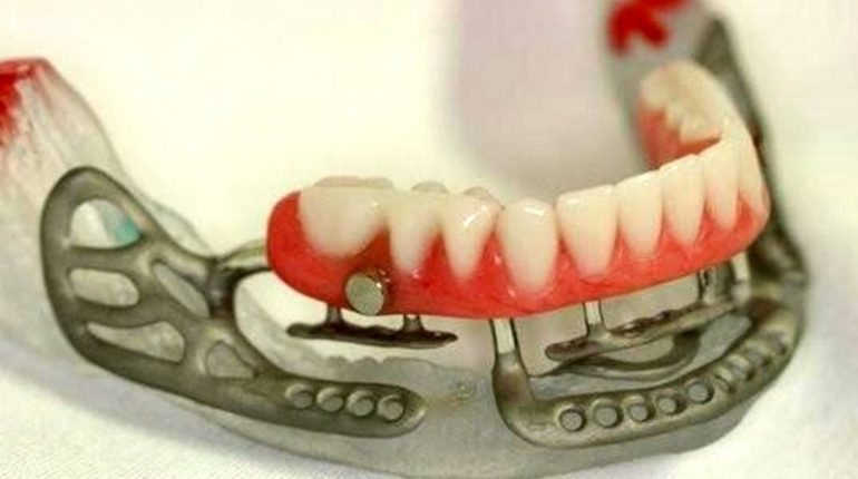 Implantologia dentale Brescia